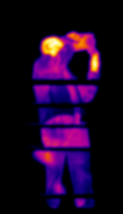 thermographie alsace